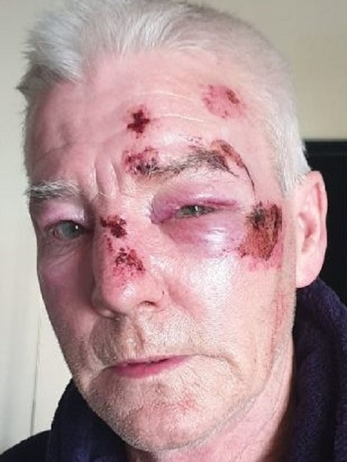 Shocking 'unprovoked and motiveless' attack on man in Fishponds